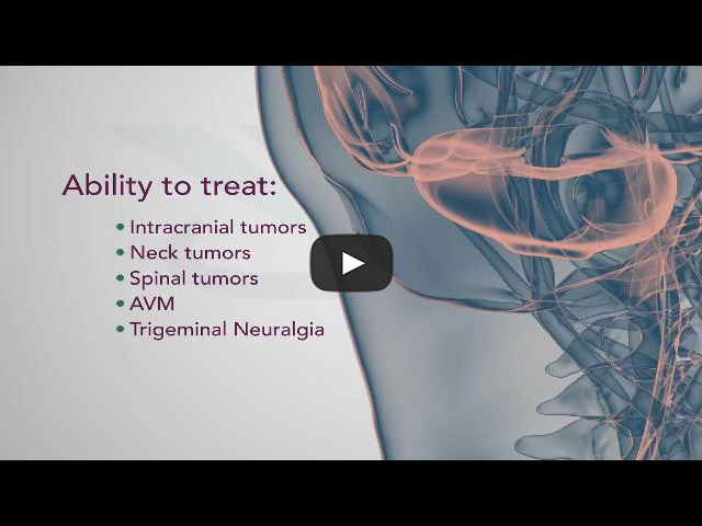 Phoenix Brain Tumor Treatment Brain Cancer Cancer Center